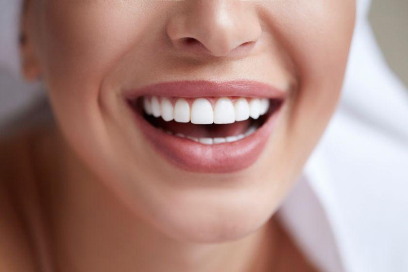 Už kuklios šypsenos - ir psichologinės problemos: odontologė įvardijo tinkamą gydymo metodą